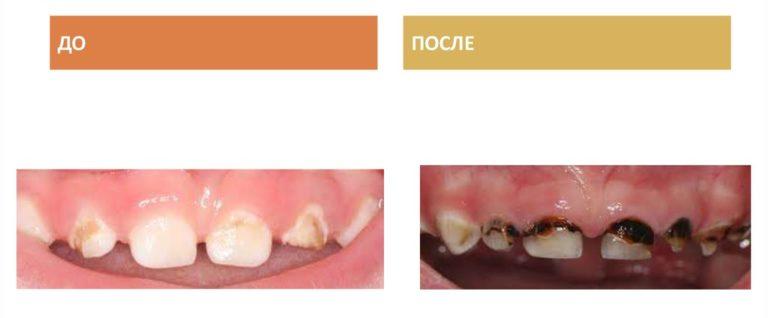 Зубы до и после серебрения