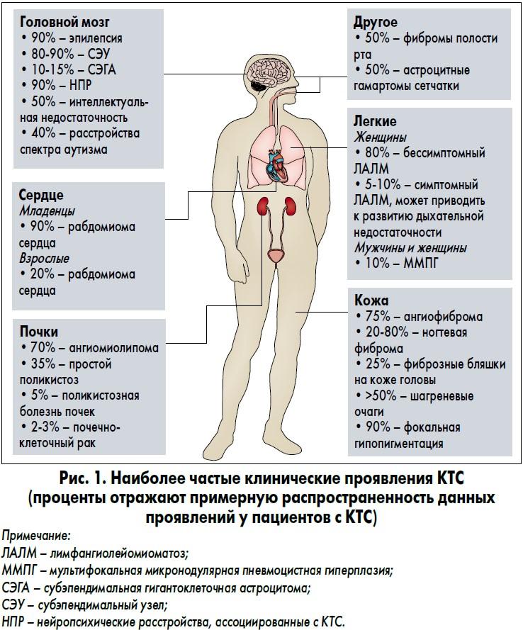 проявления туберозного склероза
