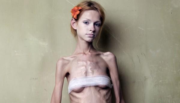 Анорексия у девочки