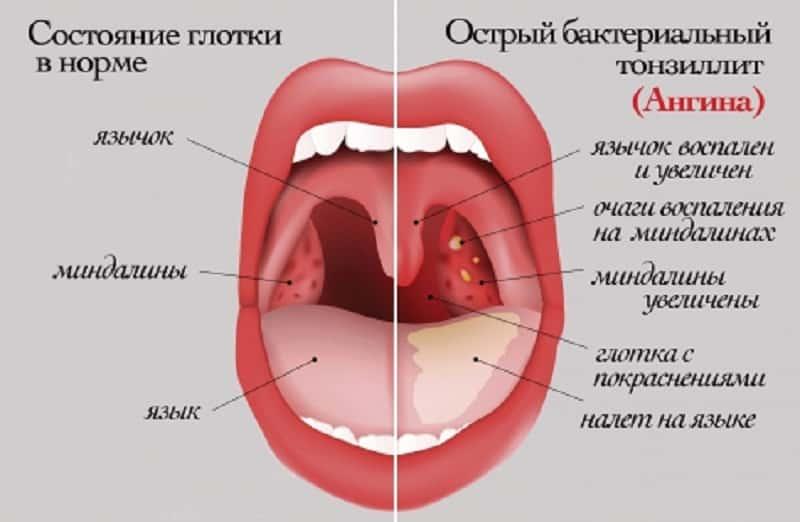 гнойные пробки при ангине (схема)