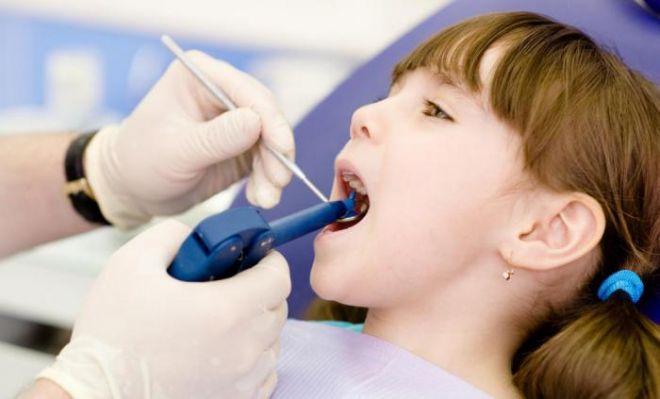 фторирование зубов девочке