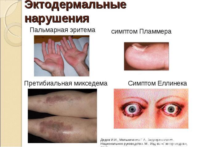 эктодермальные нарушения