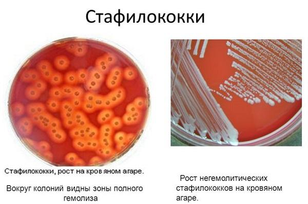 Золотистый стафилококк: норма