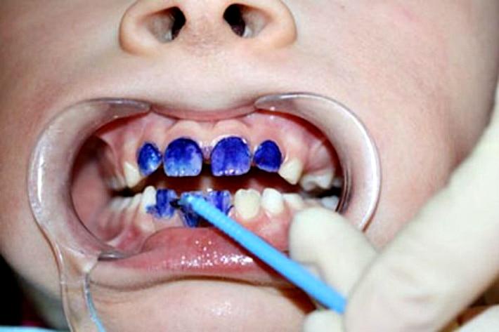 серебрение зубов у детей