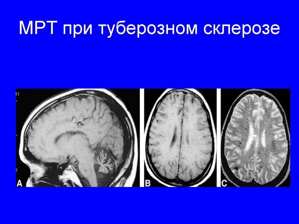 МРТ при туберозном склерозе
