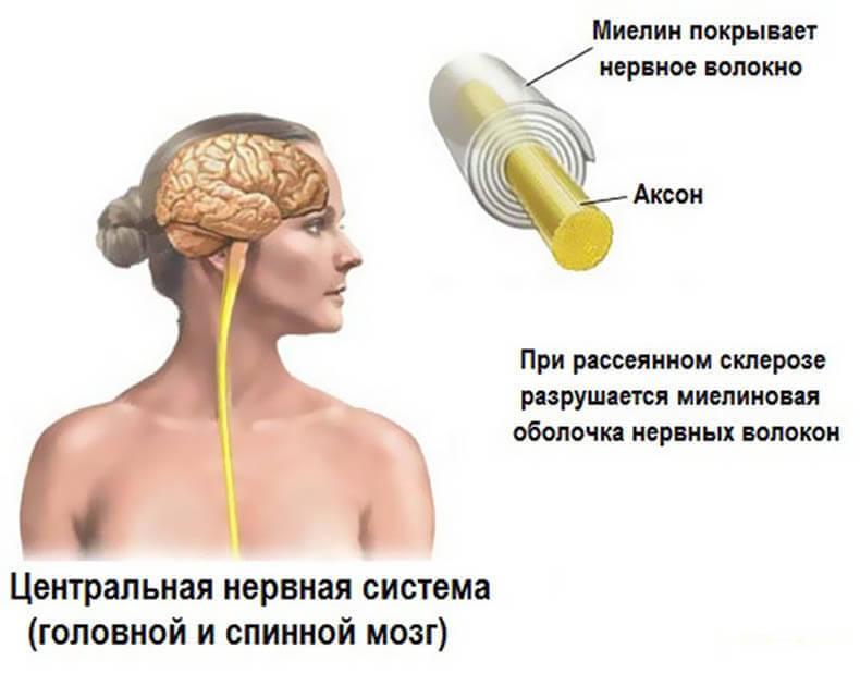 цнс и рассеянный склероз