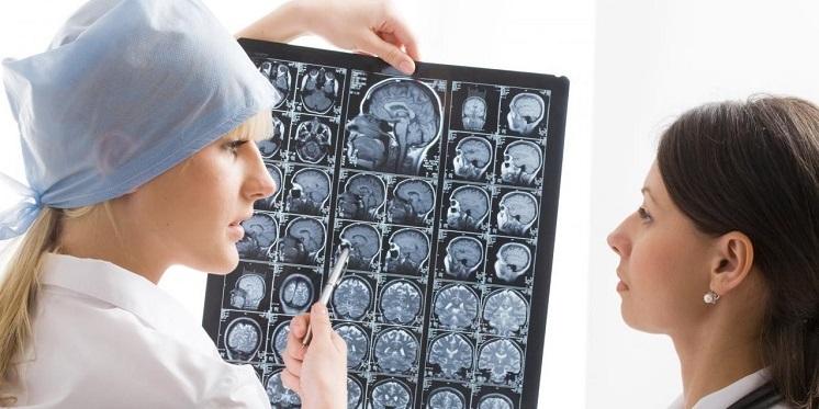 врач показывает на снимки мозга