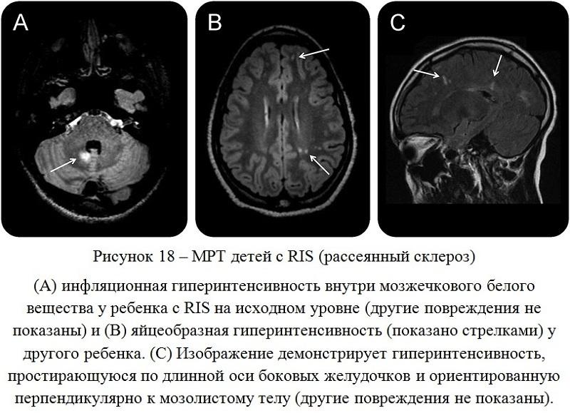 мрт мозга ребенка с рассеянным склерозом