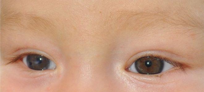 глаза ребенка с катарактой