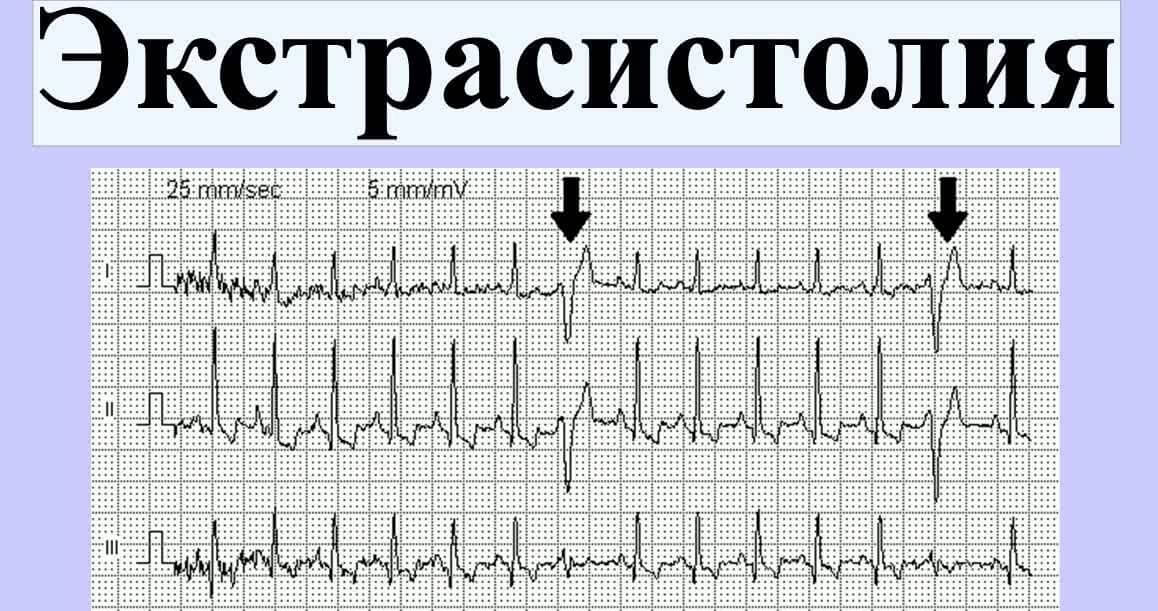 экстрасистолия у детей на кардиограмме