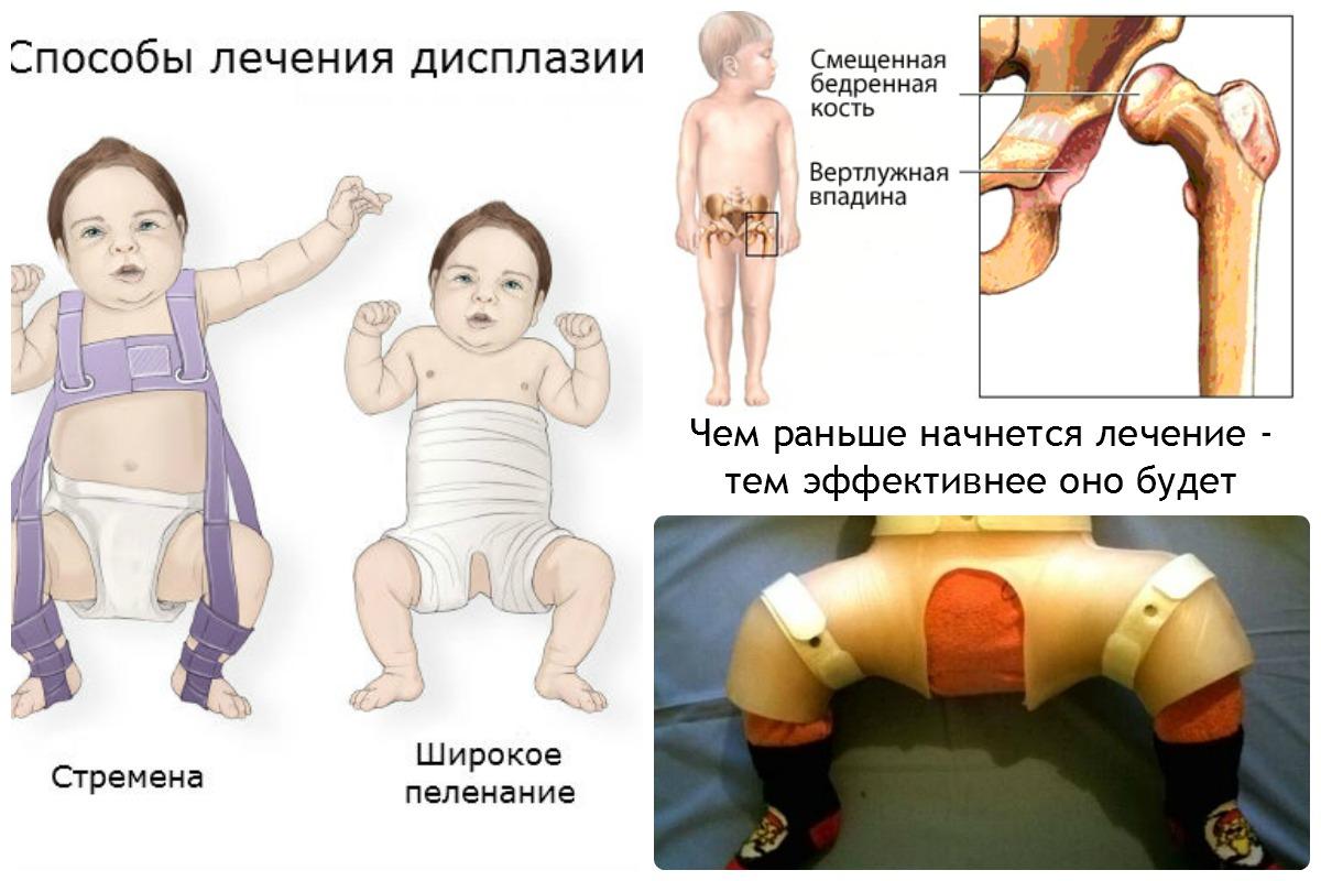 Врожденный вывих бедра лечение