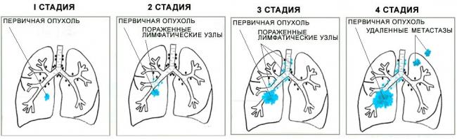 рак легких у детей - стадии заболевания