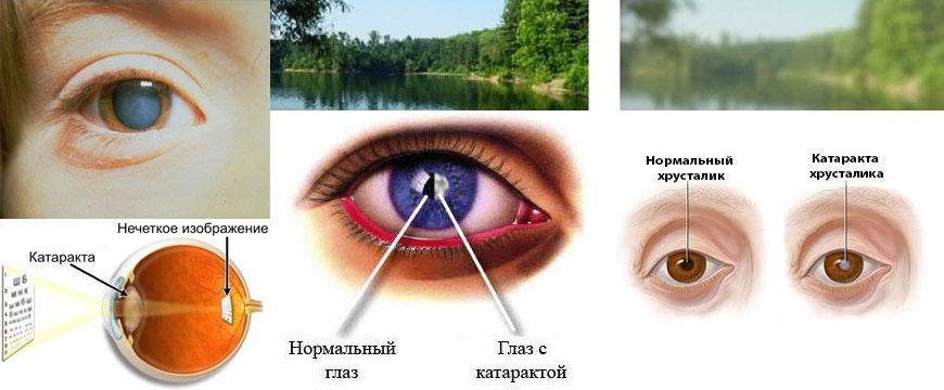 глаз нормальный и с катарактой