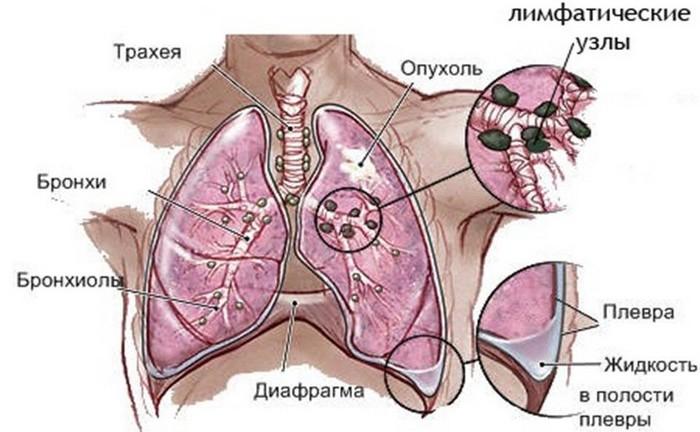 рак легких подробно