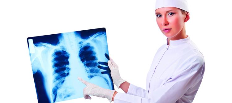девушка показывает рентген легкого