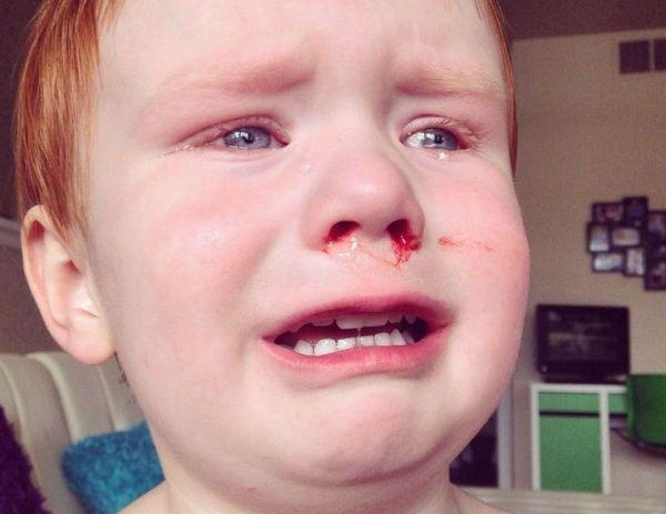 ушиб носа у ребенка