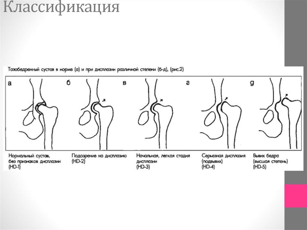 Врожденный вывих бедра классификация