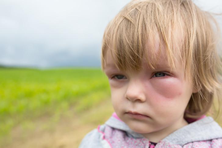 Отек, аллергия, ребенок