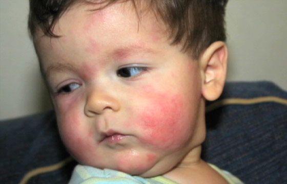 высыпания при аллергии на банан на щеках ребенка