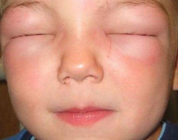 Отек, аллергия на хомяков