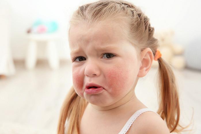 Ребенок проявления поллиноз