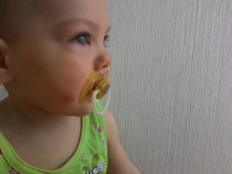 Ребенок, аллергия на комара укус