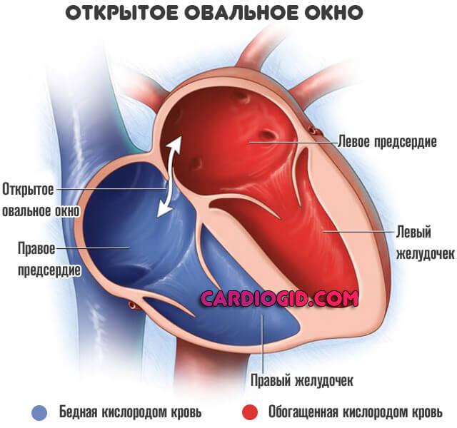 у ребенка сердце аневризм